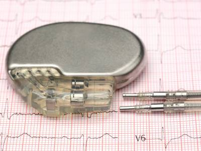 Širdies stimuliatorius ir implantuojamasis kardioverteris defibriliatorius